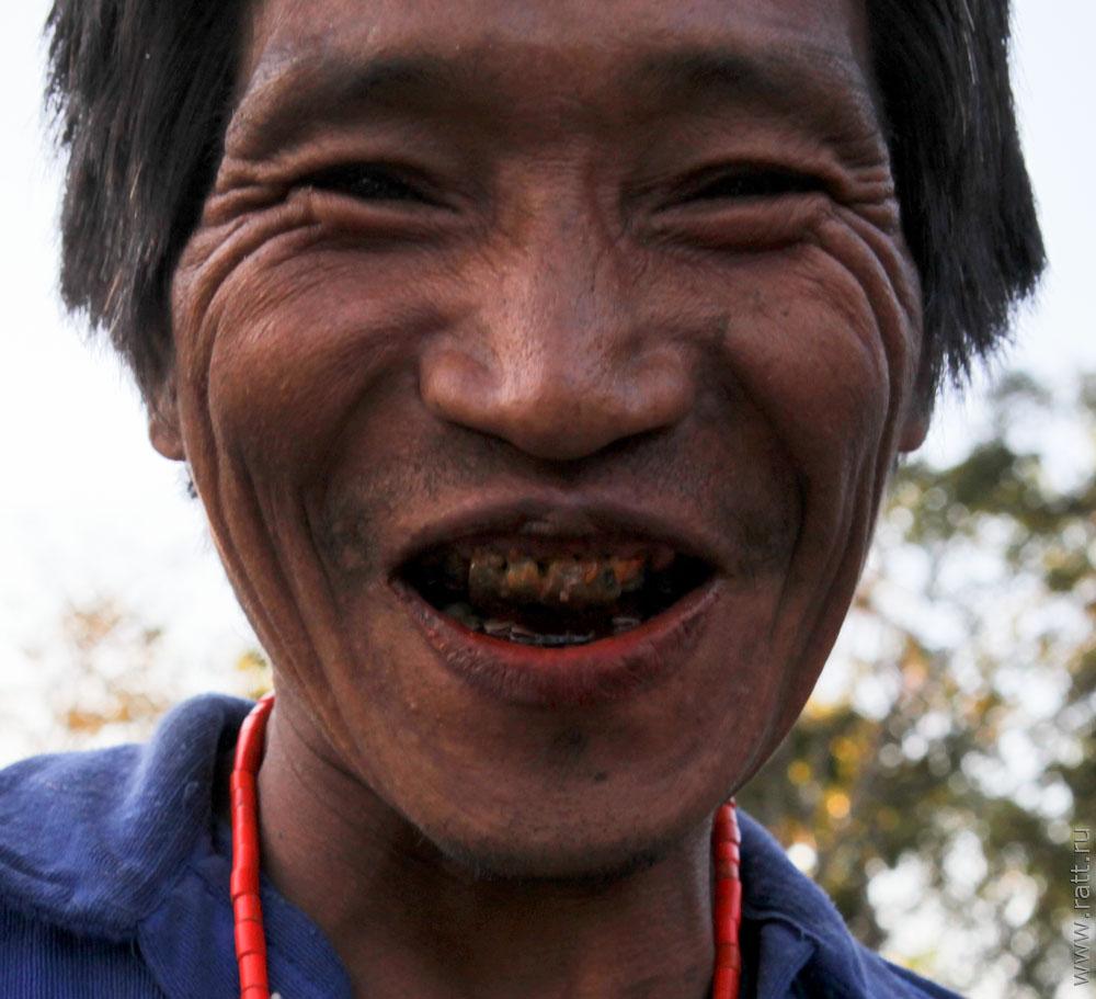 Самые грязные зубы